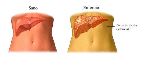 cancer de higado sintomas  causas tumor benigno