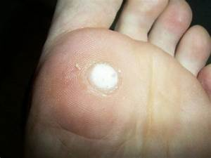 How Do You Quickly Remove Skin Tags With Salicylic Acid At Home