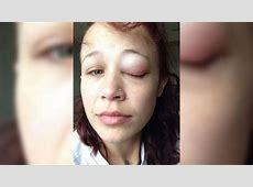 Canadian woman warns others after botched eye tattoo CTV