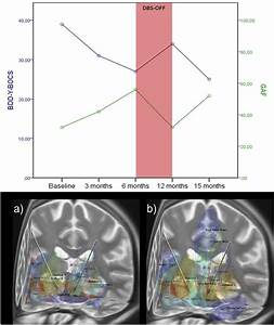 Deep Brain Stimulation Of The Ventral Capsule  Ventral