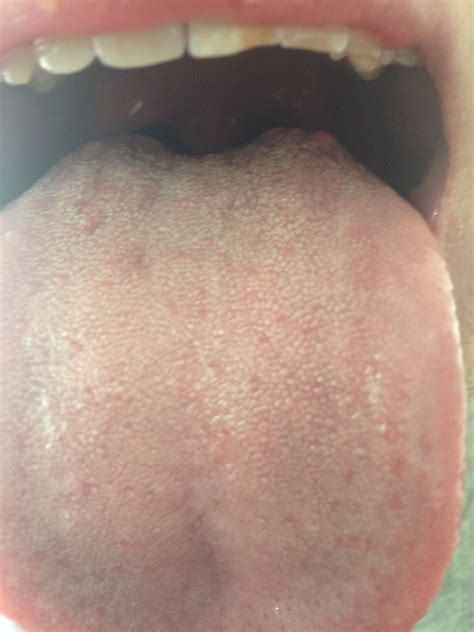 Is This Oral Thrush Oral And Dental Problems Patient