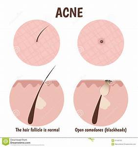 Structure Of The Hair Follicle Stock Vector