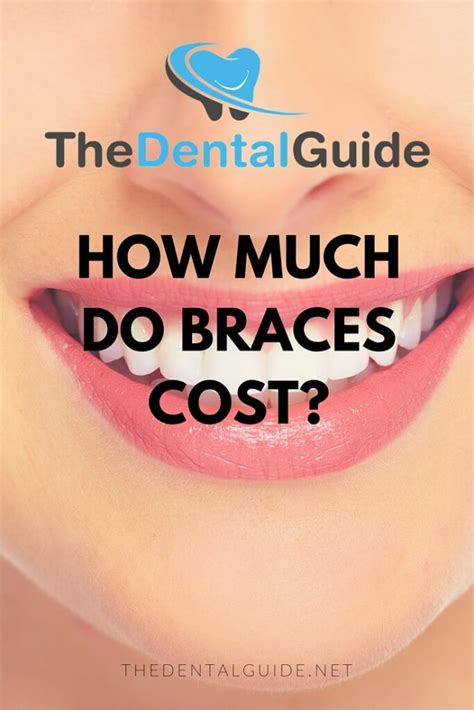 How Much Do Cost by How Much Do Braces Cost