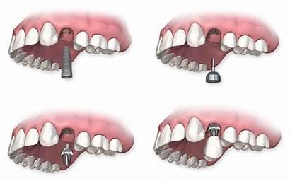Implants Implant Dental Single Dentaires Procedure Unitaire