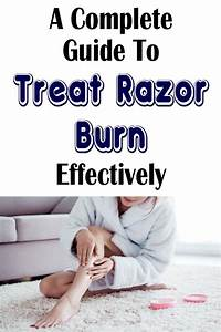 A Complete Guide To Treat Razor Burn Effectively In 2020