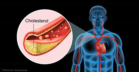 factors    youre told  cholesterol