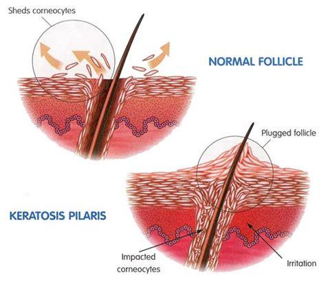 Keratosis pilaris behandling laser