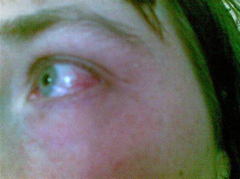 augenherpes nach guertelrose medikamente augen