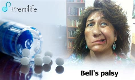 bells palsy premilife homeopathic remedies