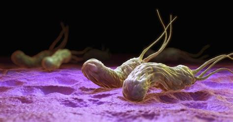 bactérie helicobacter pylori symptomes helicobacter pylori treatments how to get rid of h pylori
