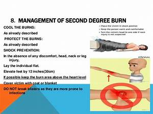 Slides first aid burns mgt