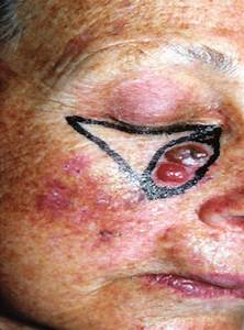 Basal Cell Carcinoma Of The Right Lower Eyelid  With The V