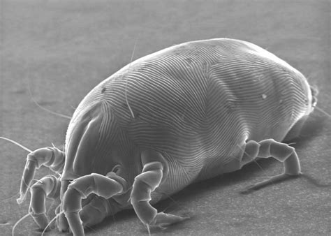 mattresses dust mites  skin cells  gross