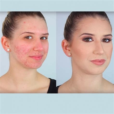 viral beauty video demonstrates   cover  acne flawlessly good housekeeping
