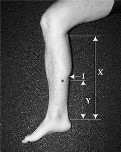 Gastrocnemius Indentation  U2022 Due To The Muscle Belly