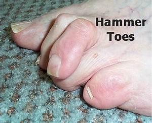 Hammer Toe - Causes, Symptoms, Treatment, Surgery ...