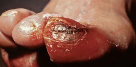 diabetisches fussulkus  heilen chronische wunden