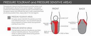 Transtibial Prosthetics Devices  U0026 Treatment