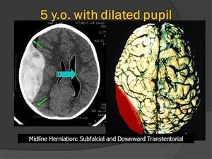 Medpix U00ae Traumatic Brain Injury