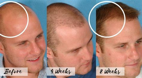 Receding Hairline Treatments Costs and Natural Regrowth