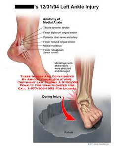 Medial Ankle Sprain Anatomy