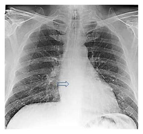 imaging review of procedural and periprocedural