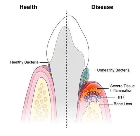 Tooth Bone Diagram by Researchers Identify Immune Culprits Linked To