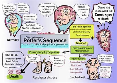 Sequence Potter Potters