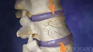 Overview Of Fractures - Injuries And Poisoning