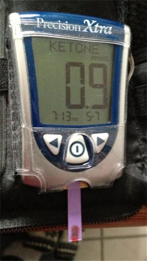 checking blood sugar  serum ketones