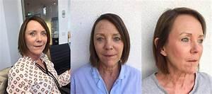 Körperfettanteil Frau Berechnen : mesotherapie f r die haut im test mit vorher nachher bildern ~ Themetempest.com Abrechnung