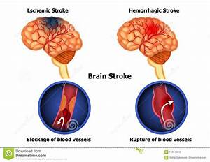 Types Of Human Brain Stroke Stock Illustration