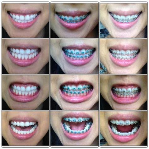 colors of braces color options for braces search bracess