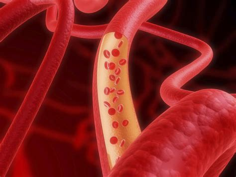 excess iron  blood  symptoms treatment risk