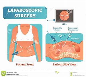 Laparoscopic Cartoons  Illustrations  U0026 Vector Stock Images