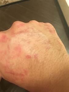 Otezla And Hives  Rashes    Psoriasis