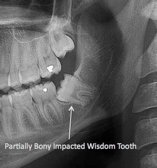 wisdom teeth extraction manhattan ny wisdom tooth