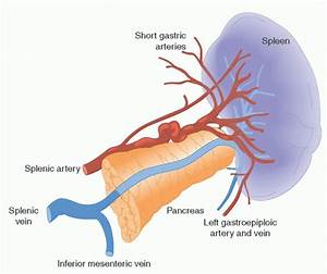 Disorders of the Spleen | Oncohema Key
