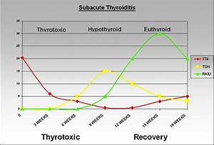 Acute And Subacute And Riedel S Thyroiditis Thyroid