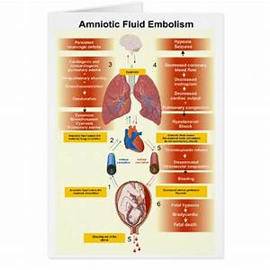 Diagram Of An Amniotic Fluid Embolism Afe Greeting Cards