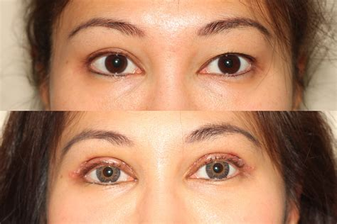 asian eyelid surgery creating  double eyelid