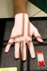 hand positions radiographic procedures lab flashcards