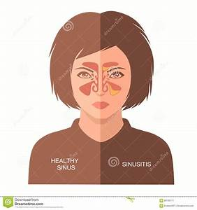 Sinusitis Disease  Stock Vector  Illustration Of