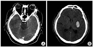 Axial Ct Image Of Brain Showing Intracranial Hemorrhage Of