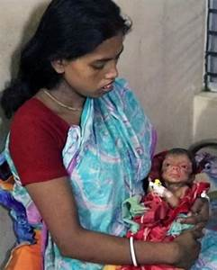 In Pictures: Baby Born With Rare Aging Disease, Progeria ...