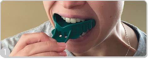 How To Make A Dental Impression For A Mouthguard