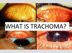 Trachoma Blindness Is Years Of Treatment Enough To