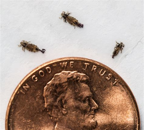 Images Of Lice Bad Bugs State S Lice Now Highly Resistant To Common