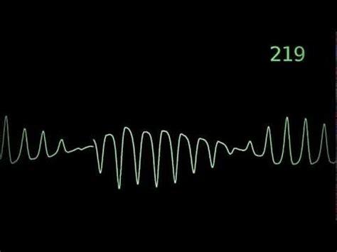 torsades de pointes heart monitor animation youtube