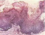 Папиллома у взрослых лечение
